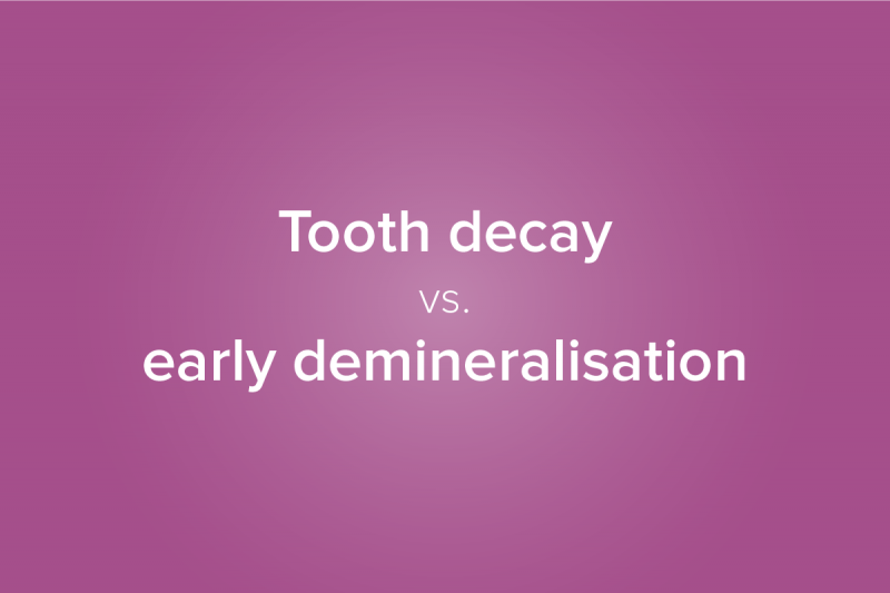 Tooth decay vs demineralisation